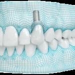 Выгоды применения 3D-принтера в стоматологии
